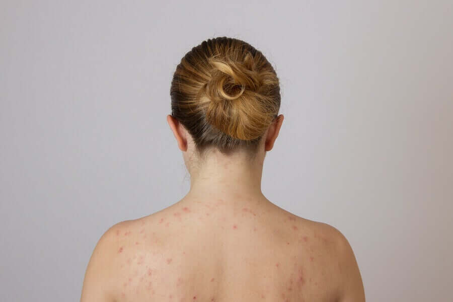 Mulher com acne nas costas