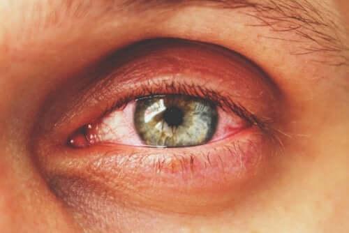 Olho com inflamação
