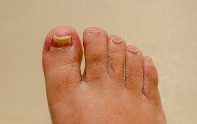 Remédios para a onicomicose nas mãos e nos pés