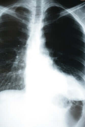 O que é a pneumonia silenciosa?