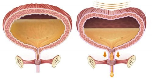 Tratamento da retenção urinária pós-operatória