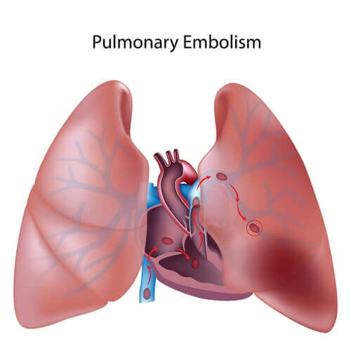 Tudo o que você precisa saber sobre a tromboembolia pulmonar