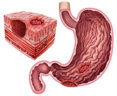 Úlceras pépticas e Helicobacter pylori