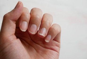 Como endurecer as unhas naturalmente? 5 dicas