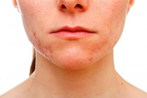 Mulher com acne leve