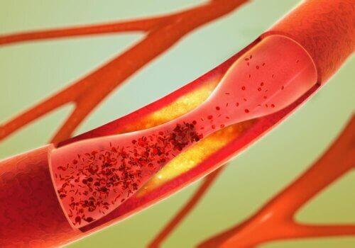 Placa obstruindo artéria