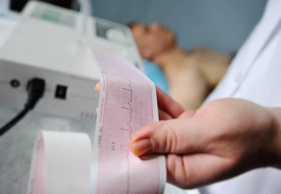 Eletrocardiograma Holter