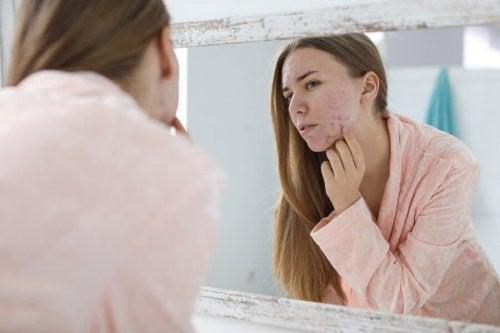 Acne hormonal: causas e tratamentos