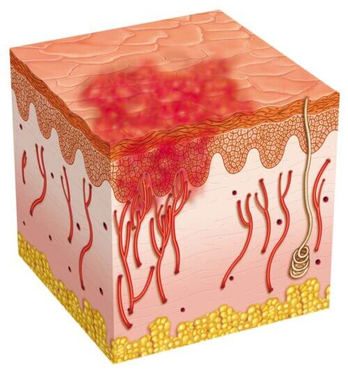 Úlcera nas camadas da pele