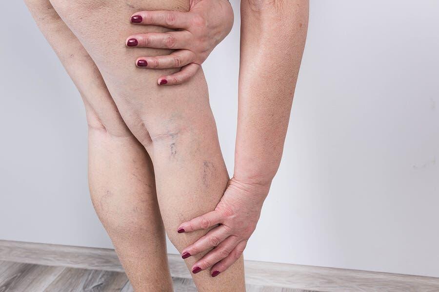 Retenção de líquidos nas pernas