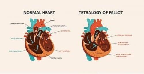 Esquema da tetralogia de Fallot