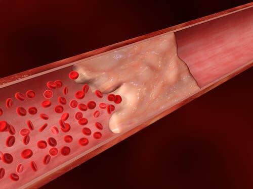 Cálcio nas artérias