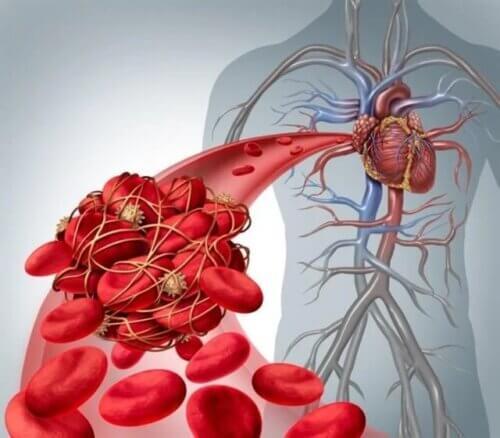 Coágulos no sangue