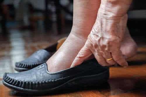 5 conselhos para aliviar as pernas inchadas pelo calor
