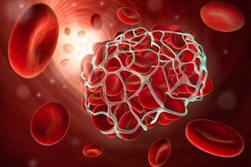 O clopidogrel ajuda a prevenir os coágulos