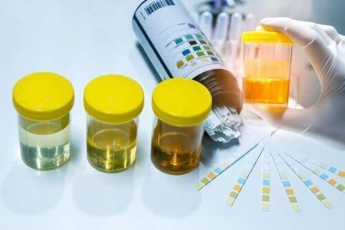 Proteína na urina: sintomas, causas e tratamento