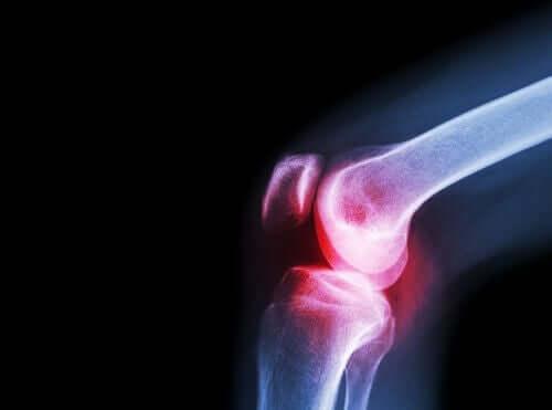 As dores nas articulações são sintomas do lúpus