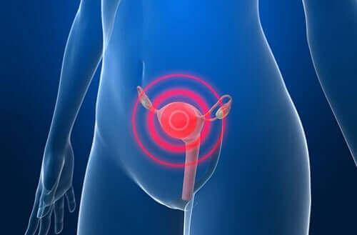 Como combater o câncer de endométrio?
