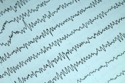 Epilepsia e amamentação
