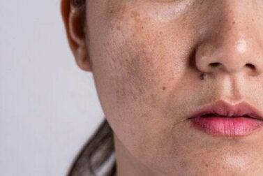 Quais são as causas por trás da hiperpigmentação?