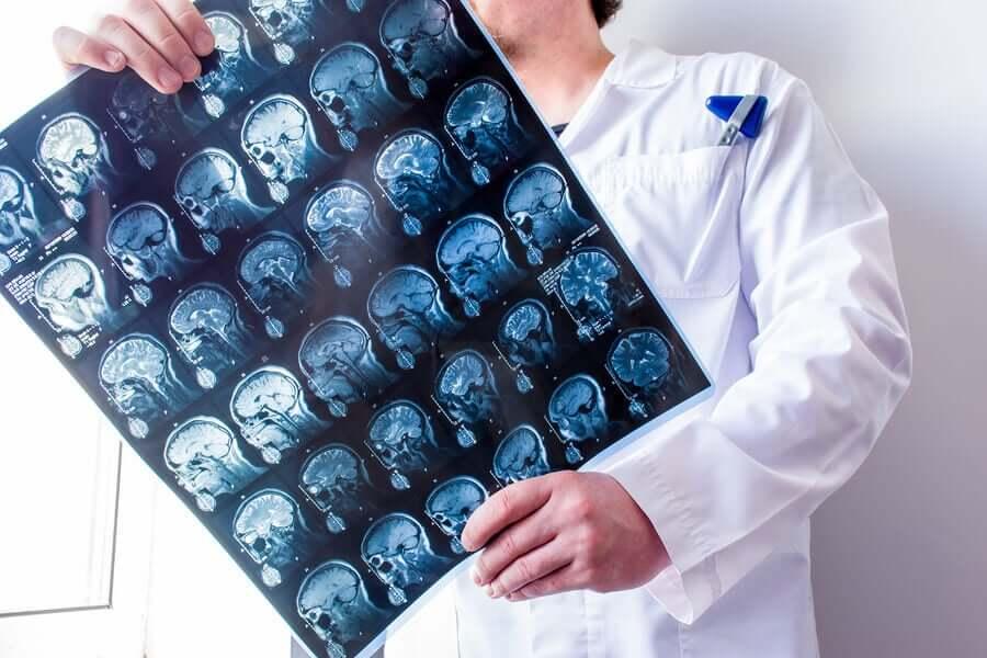 Exame de imagem cerebral