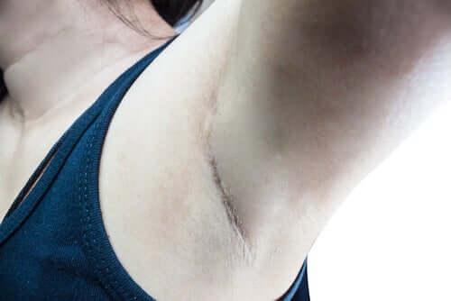 O que é o linfonodo sentinela?