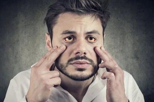 Síndrome de Gilbert: sintomas e tratamento