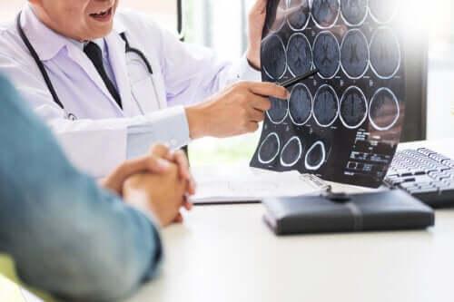 Neuroglúten: relação entre glúten e doenças neurológicas