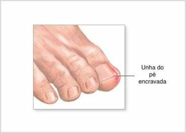 Como cortar as unhas e evitar que elas encravem?