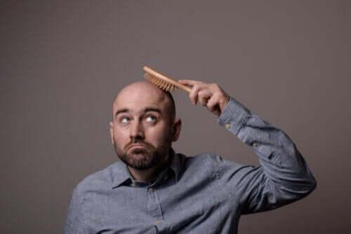 Tipos de alopecia