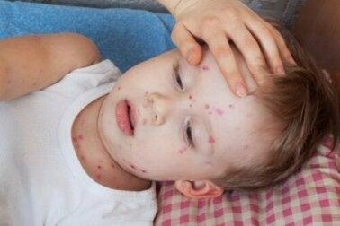 Como tratar a urticária em crianças?