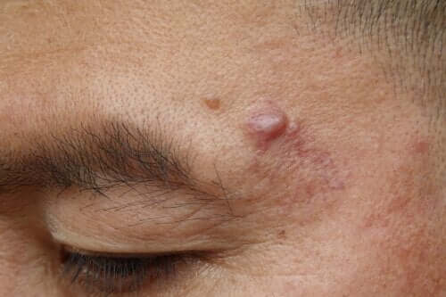 Cistos epidermoides: causas e possíveis tratamentos