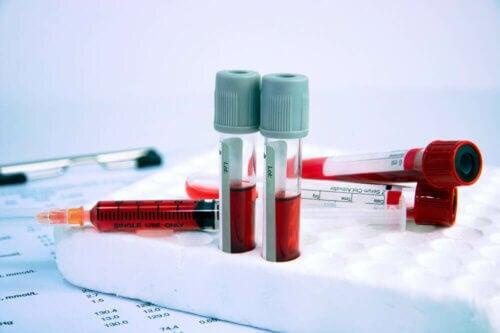 Exame de sangue para detectar a anemia