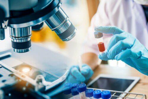 Exame para detectar HIV