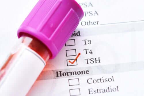 Quais são as causas do TSH baixo?
