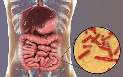 Como saber se a flora intestinal está danificada?