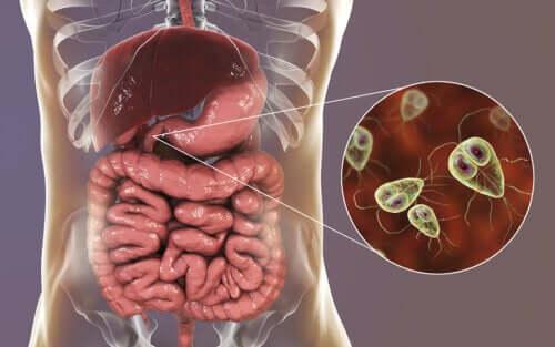 Giardíase: sintomas e tratamento
