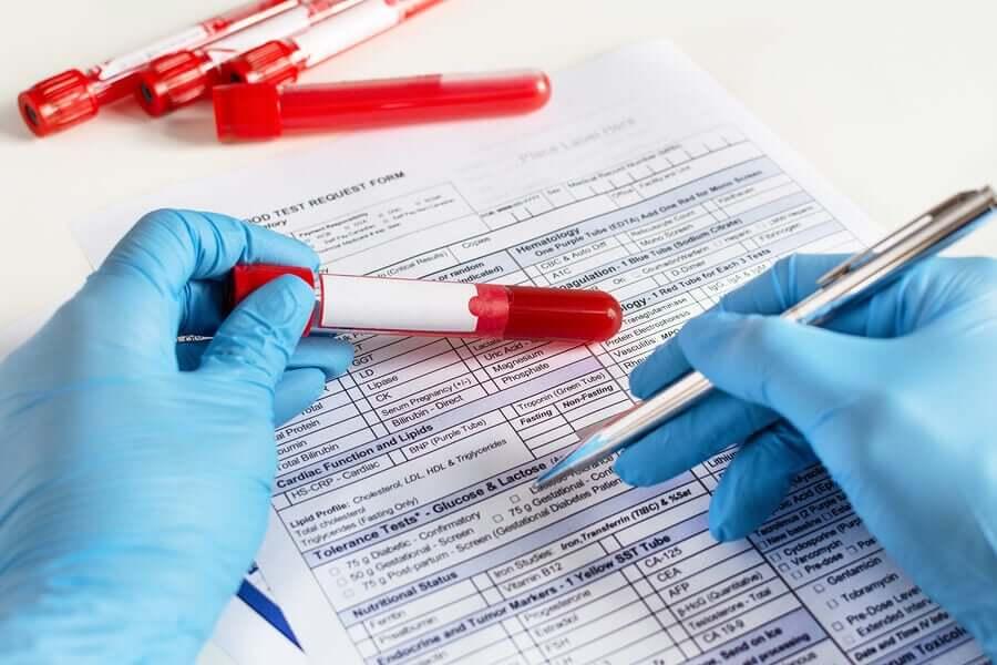 Resultados de exame de sangue