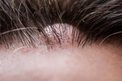 O que é um dermatofibroma?