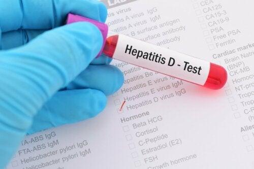Exame de hepatite D