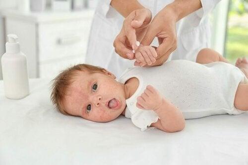 A pele delicada do recém-nascido