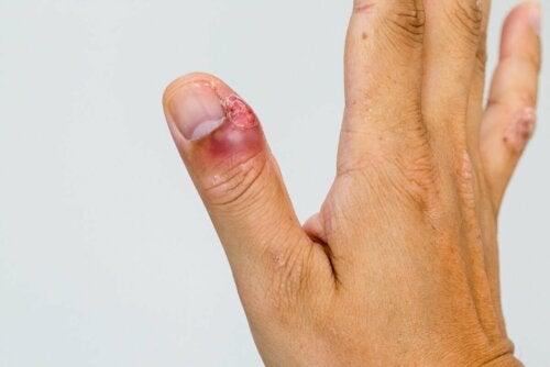 Inflamação no dedo