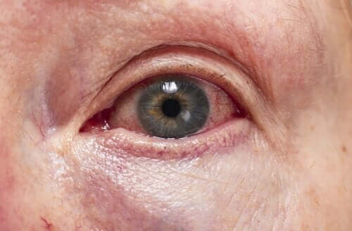 Diagnóstico e tratamento da uveíte