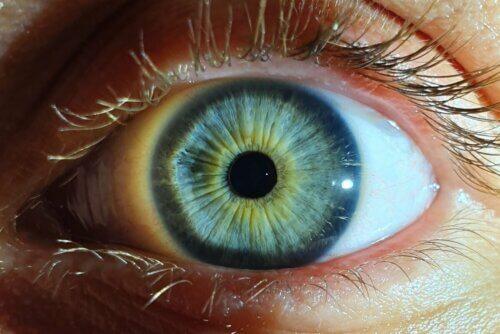 Miose nos olhos