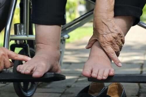Dicas para cuidar do pé diabético no verão