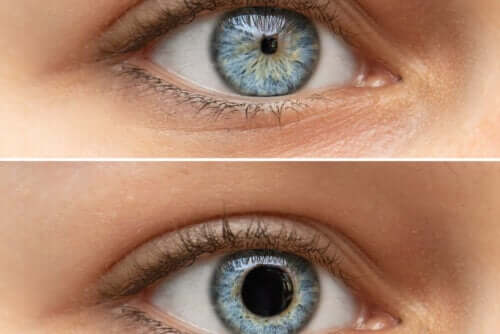Pupilas puntiformes ou miose: por que isso ocorre?