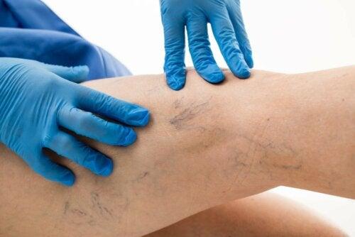 Tratamentos para as varizes