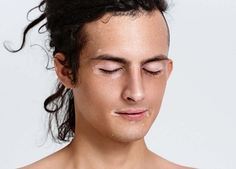 Vitiligo no rosto