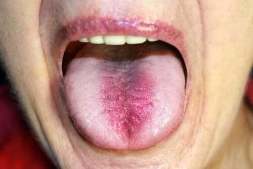 Síndrome da ardência bucal