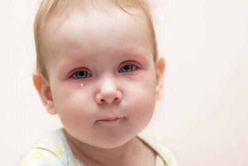 O que fazer diante da conjuntivite em crianças?